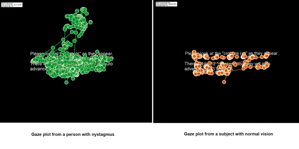 Gaze plots from a person with nystagmus (on the left) and without  nystagmus (on the right).